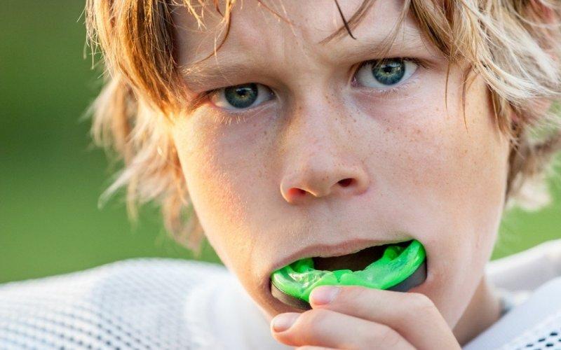 Как се приготвя протектор за уста